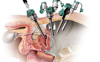 Prostate Surgery In Jaipur